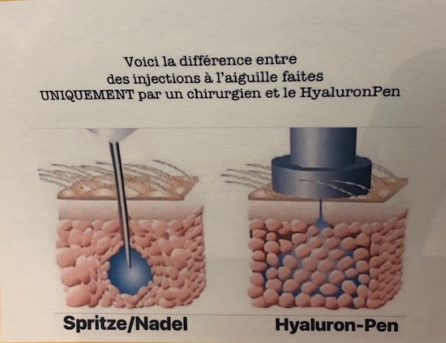 difference entre injections